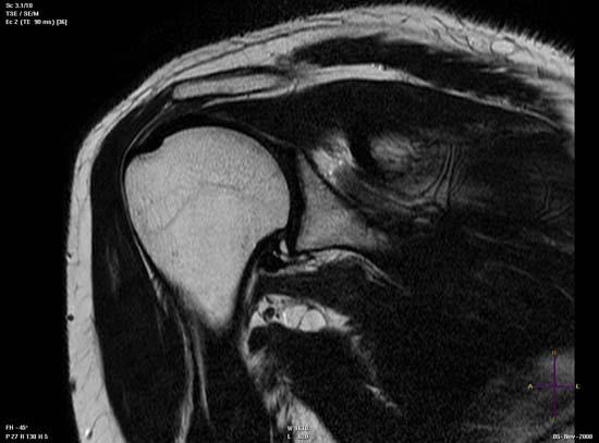 El cinturón contra el dolor en los riñones