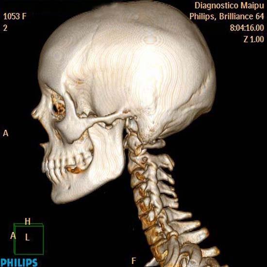 La osteocondrosis que esto y como es curado