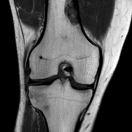 resonancia magnetica de rodilla izquierda precio